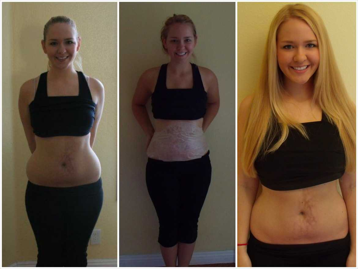 It Works! Before and After Picture Review